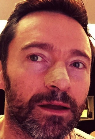 Hugh Jackman cancer scare