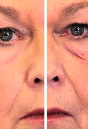 Scientists at MIT, Massachusetts General Hospital, Living Proof, and Olivo Labs have developed a new material that can temporarily protect and tighten skin, and smooth wrinkles.