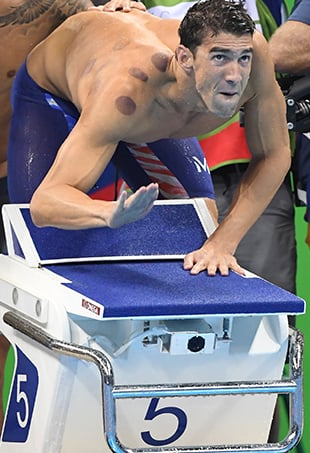 """Once you get over that facial expression, note Olympic swimmer Michael Phelps' brown shoulder marks, the visual results of """"cupping."""""""